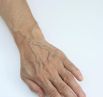 浮き 手 の 血管 手の血管が浮き出る原因はこれ!自宅で簡単にできる改善法 |
